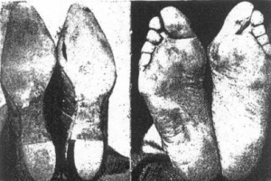 FEETShoes
